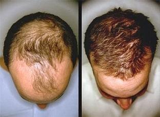 05-hairmastic